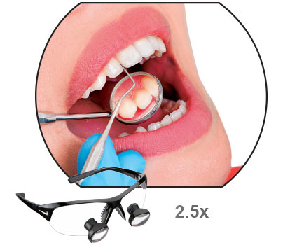 Designs for Vision Iconic Dental Loupes with TRUE ... - photo#20